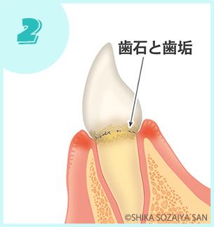 歯周病の始まり|歯周病の進行の仕方