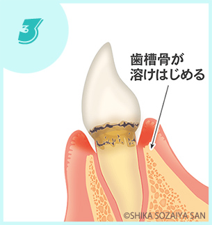 軽度|歯周病の進行の仕方