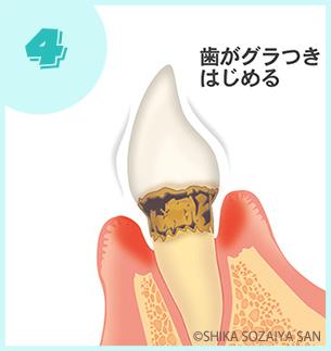 中程度|歯周病の進行の仕方