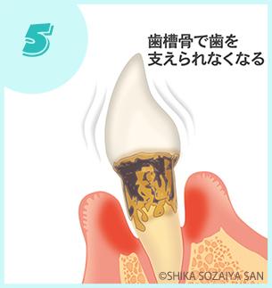 重度|歯周病の進行の仕方