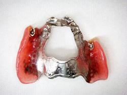 アタッチメント義歯 はめていると気づかれない義歯