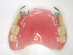 健康保険適用の義歯 はめていると気づかれない義歯