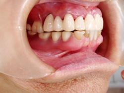 アタッチメント義歯を装着した状態(側面観) はめていると気づかれない義歯