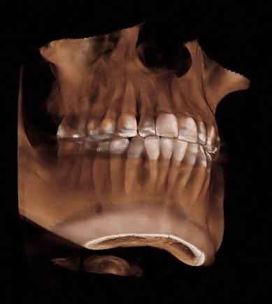 デジタルCTレントゲン導入 「プロマックス3D」
